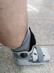 le pied de robocop a hôpital